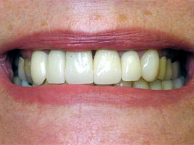Central and Lateral Incisor Implants After