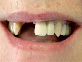 Central and Lateral Incisor Implants Before