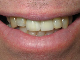 Central Incisor Implant After