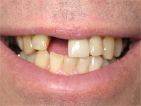 Central Incisor Implant Before
