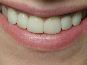 Lateral Incisor Implants After