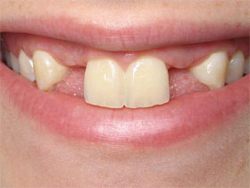 Lateral Incisor Implants Before