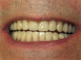 Overdenture After